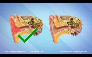 Как убрать слизь из слухового канала: средства для промывания, правила проведения, меры профилактики
