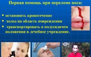 Как вправить нос в домашних условиях и можно ли это делать?
