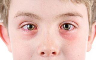 Дексаметазон детям: инструкция по применению и дозировка глазных капель