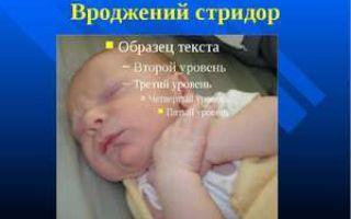 Стридор у новорожденных и детей симптомы, диагностика и лечение