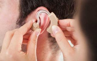 Инвалидность по слуху: как получить группу взрослому или ребёнку, какие льготы и выплаты положены