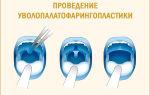 Средство от храпа — лекарства, спреи и таблетки: характеристики и состав препаратов