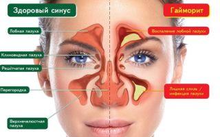 Что такое синусит: симптомы и лечение заболевания у взрослых