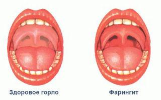 Чем отличается ларингит от фарингита — методика лечения болезни и описание недуга