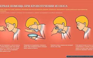 Кровь из носа: причины появления, первая помощь, лечебные и профилактические мероприятия