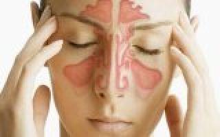 Гайморит при беременности — лечение и профилактика