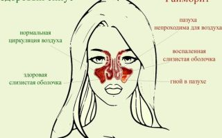 Сухой ринит — симптомы и особенности болезни, лечение в домашних условиях