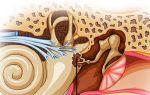 Болезни уха — причины, симптомы и лечение заболеваний ЛОР-органов