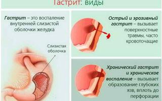 От чего на языке белый налёт: причины появления, возможные заболевания, диагностика и принципы лечения