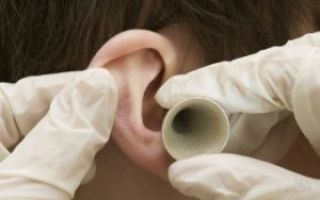 В ухе как-будто вода, ощущение жидкости: что делать и чем лечить?