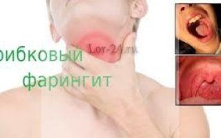 Фарингомикоз — основные симптомы заболевания и клиническая картина