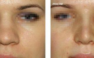 Как сделать меньше нос в домашних условиях гимнастика для носа