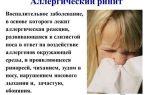 Какие бывают заболевания носа: разновидности патологий, характерные симптомы, диагностика и принципы лечения