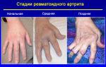 Осложнения после ангины последствия у взрослых
