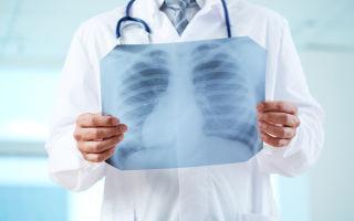 Что показывает рентген: преимущества методики и особенности процедуры