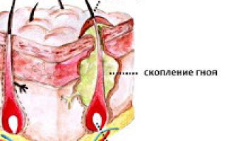 Фурункул в носу: фото, как лечить чирей, возможные осложнения