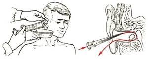 Как правильно промывать ухо от пробки в домашних условиях