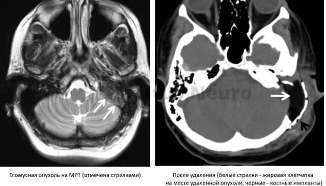 Пульсирующий тиннитус причины, признаки и лучшие методы лечения