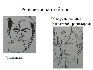 Как вправить нос в домашних условиях и можно ли это делать