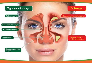 Выделения из носа желтые, зеленые сопли с кровью, причины, что делать
