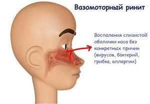 Вазомоторный ринит у детей симптомы и лечение, что это такое