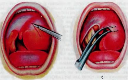 Шишка в горле причины возникновения: заболевания, провоцирующие образования