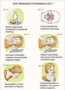 Как применять Диоксидин в нос при гайморите и синусите дозировка взрослому