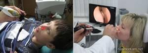 как проводится эндоскопия носа фото брюнетка