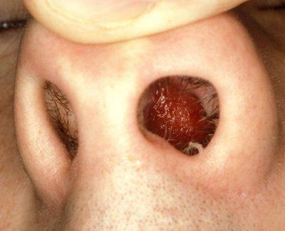 Какие бывают заболевания носа - разновидности заболеваний