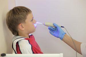 Лечение аденоидов лазером у детей быстро и без боли