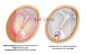 Жидкость в ухе за барабанной перепонкой: лечение