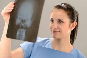 Гайморовы пазухи: симптомы воспаления, анатомия, рентгенография