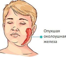 Воспаление слюнной железы фото причины, симптомы и лечение