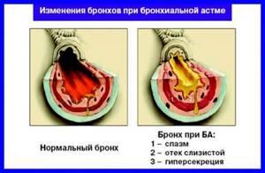Осложнение бронхита: факторы риска и профилактика осложнений