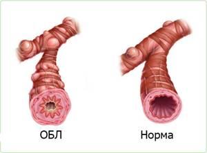 Обструктивный бронхит - что это, причины, симптомы, лечение