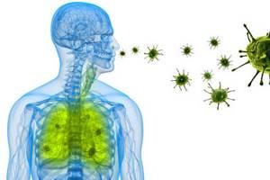 Вирусная пневмония - причины, симптомы, диагностика и лечение