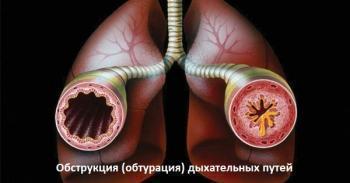 Тизин спрей инструкция по применению и фармакологические свойства