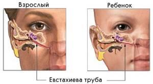 Причины закладывания ушей в самолете: Предпосылки проблемы