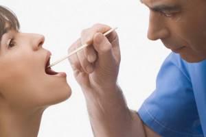 Стоматит в горле на миндалинах, в гландах у взрослых и детей