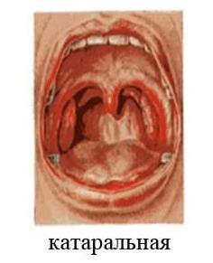 Катаральная ангина симптомы, лечение у взрослых и детей