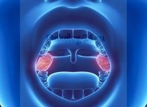 Рак миндалин гланд: виды, симптомы опухоли и их стадии