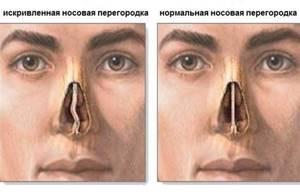Можно ли закапывать в нос облепиховое масло при рините