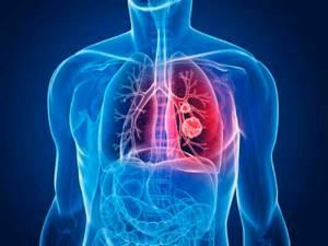 Что такое клебсиеллезная пневмония - симптомы, лечение