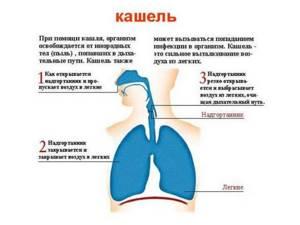 Сухой лающий кашель у взрослых без температуры как лечить и что делать