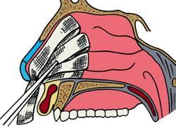 Из носа в горло течет кровь: причины и симптомы
