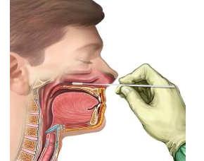 Мазок из зева, носа, горла норма, расшифровка