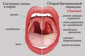 Ингаляции при ангине с чем делать, препараты для небулайзера
