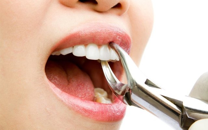 Можно ли лечить зубы при простуде и насморке и температуре
