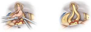 Невринома слухового нерва симптомы и лечение