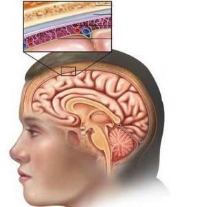 Менингит виды, причины, признаки, симптомы, лечение